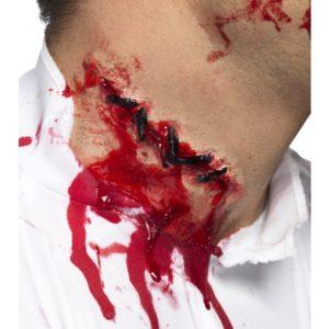 Stitches Scar